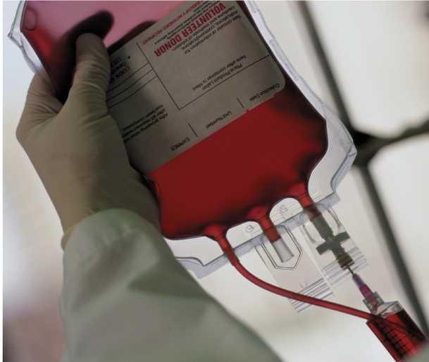 sanguin