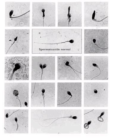 spermatozoide1